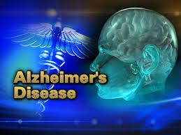 alz disease